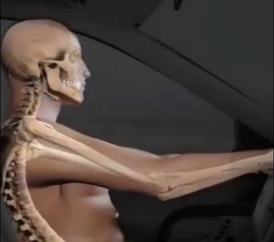"""El """"whiplash"""" o lesión del latigazo: Acidente de coche"""