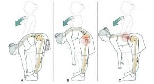 flexion lumbar