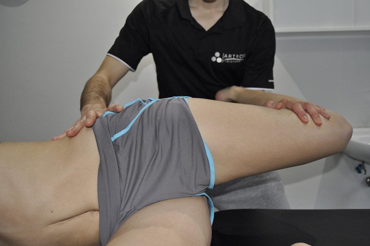 neurodinámica nervio femoral